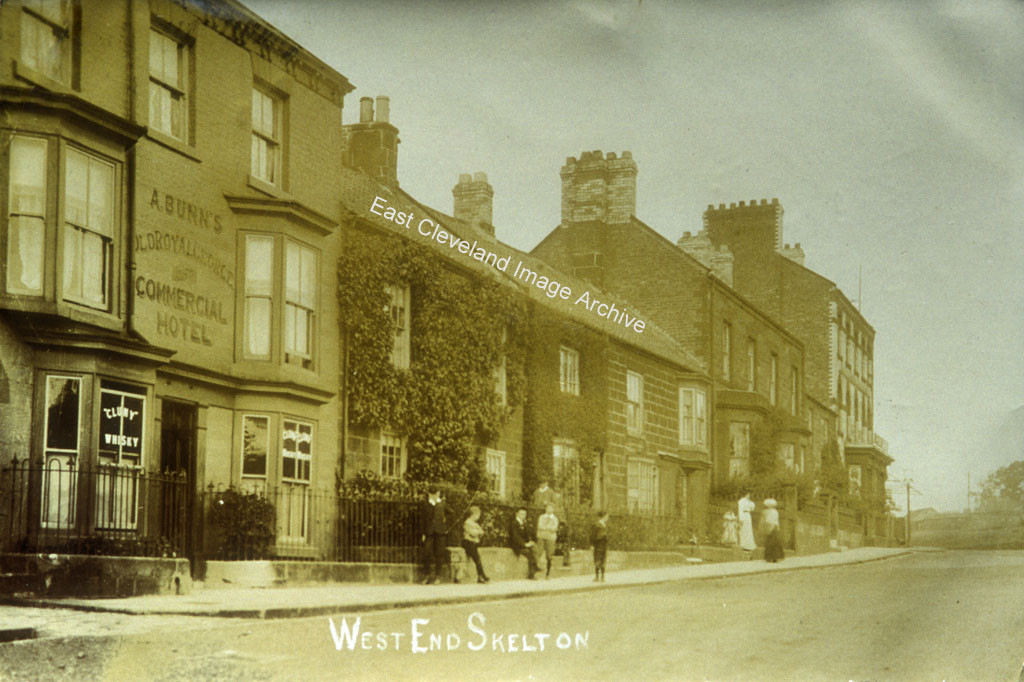 West End Skelton