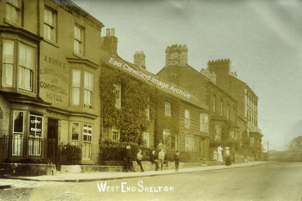 West End Skelton